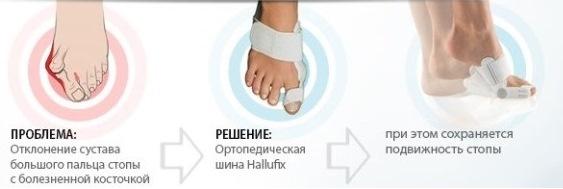 Купить халюфикс Hallufix Киев