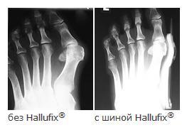 коррекция большого пальца вальгусная шина Халлюфикс